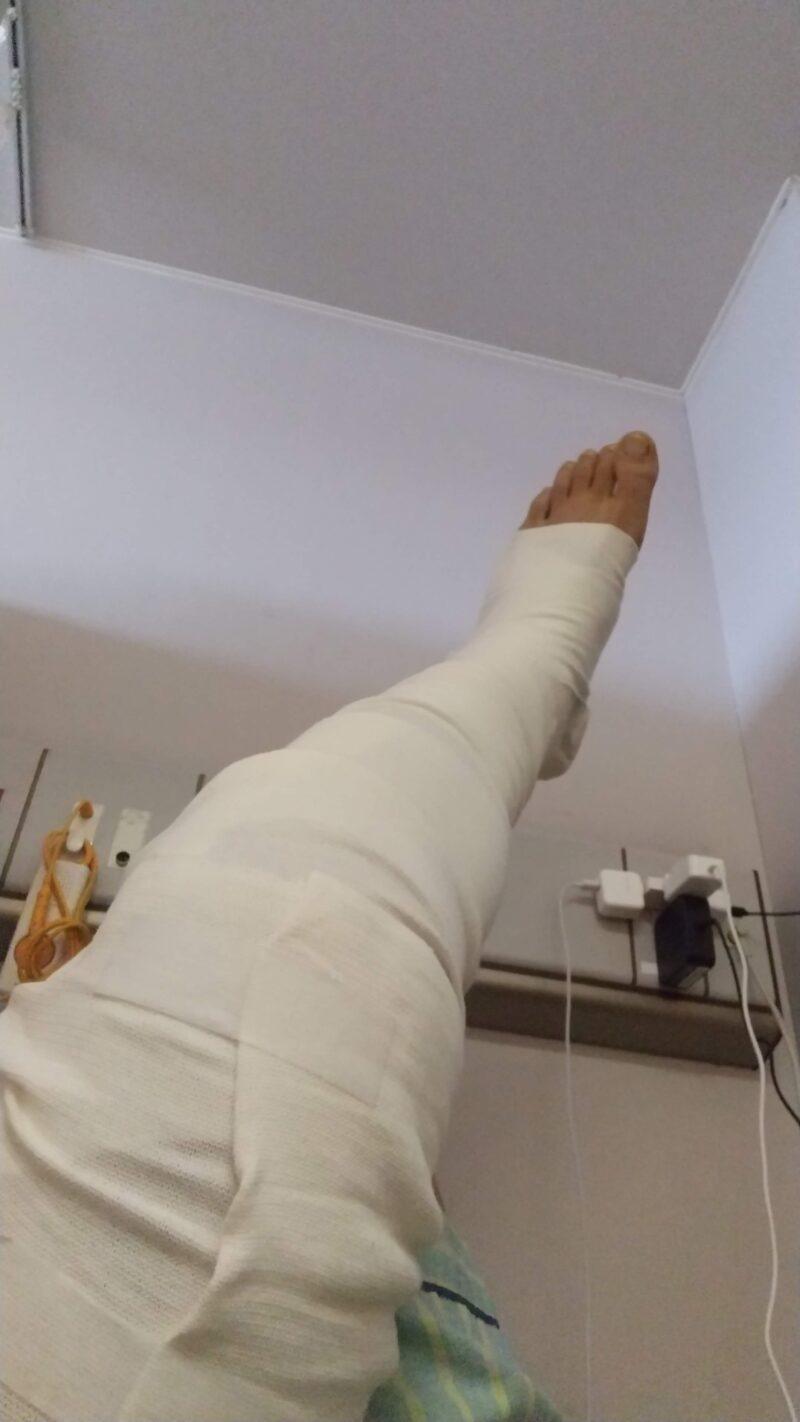 【ご報告】スノーボード足骨折入院手術 日常で有難いと知った事3選   Report.Snowboarding.broken-leg.3-things-I-learned-to-appreciate-in-my-daily-life.jpg
